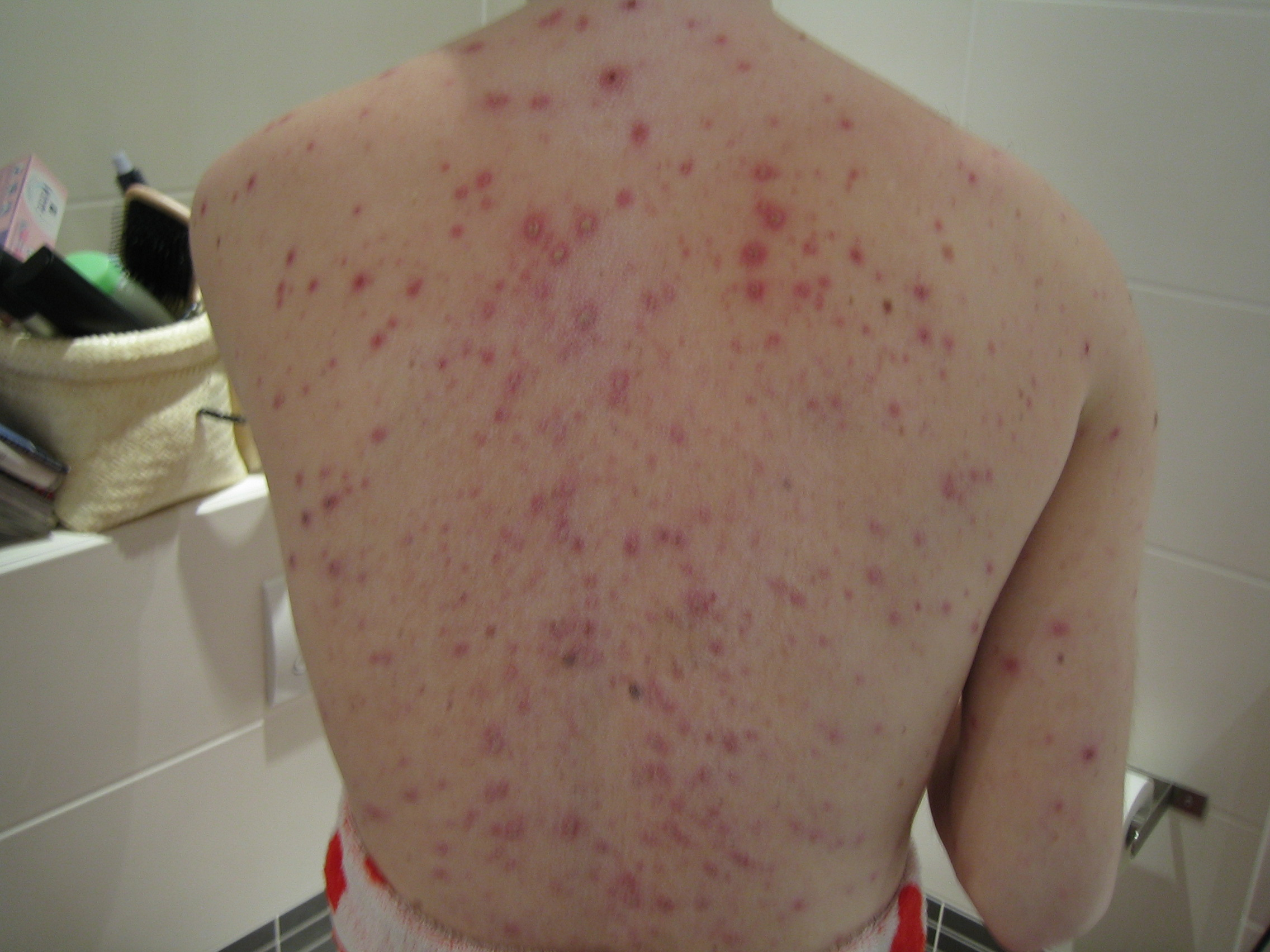 Datei Adult Back With Chickenpox Jpg Wikipedia