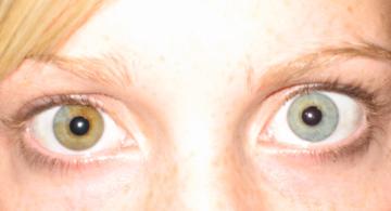 File:Blue green sectoral heterochromia iridis.jpg