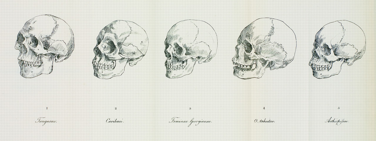 Why Do Skulls Show Up In Famous Paintings