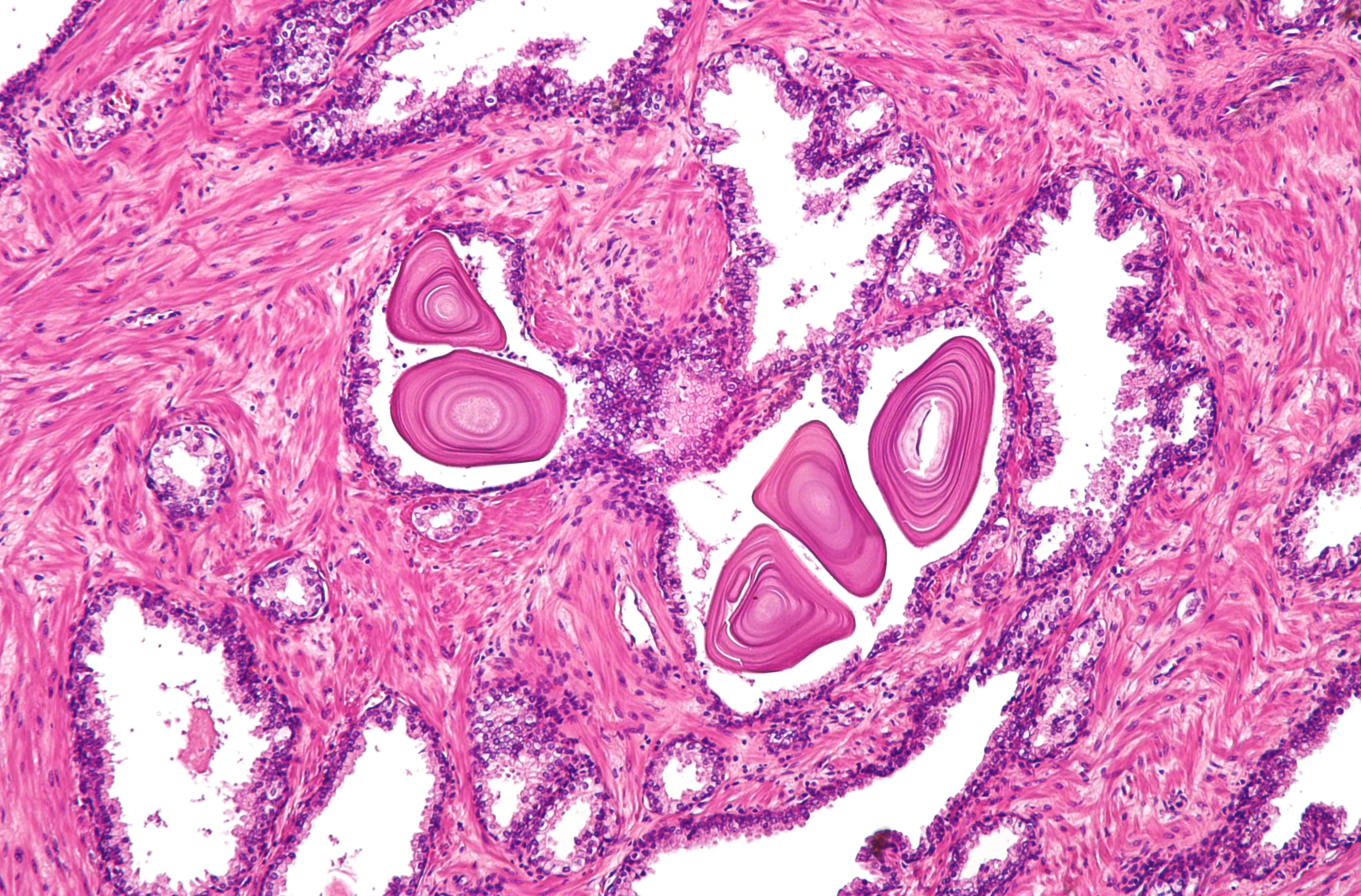 corpus amylacea prostate