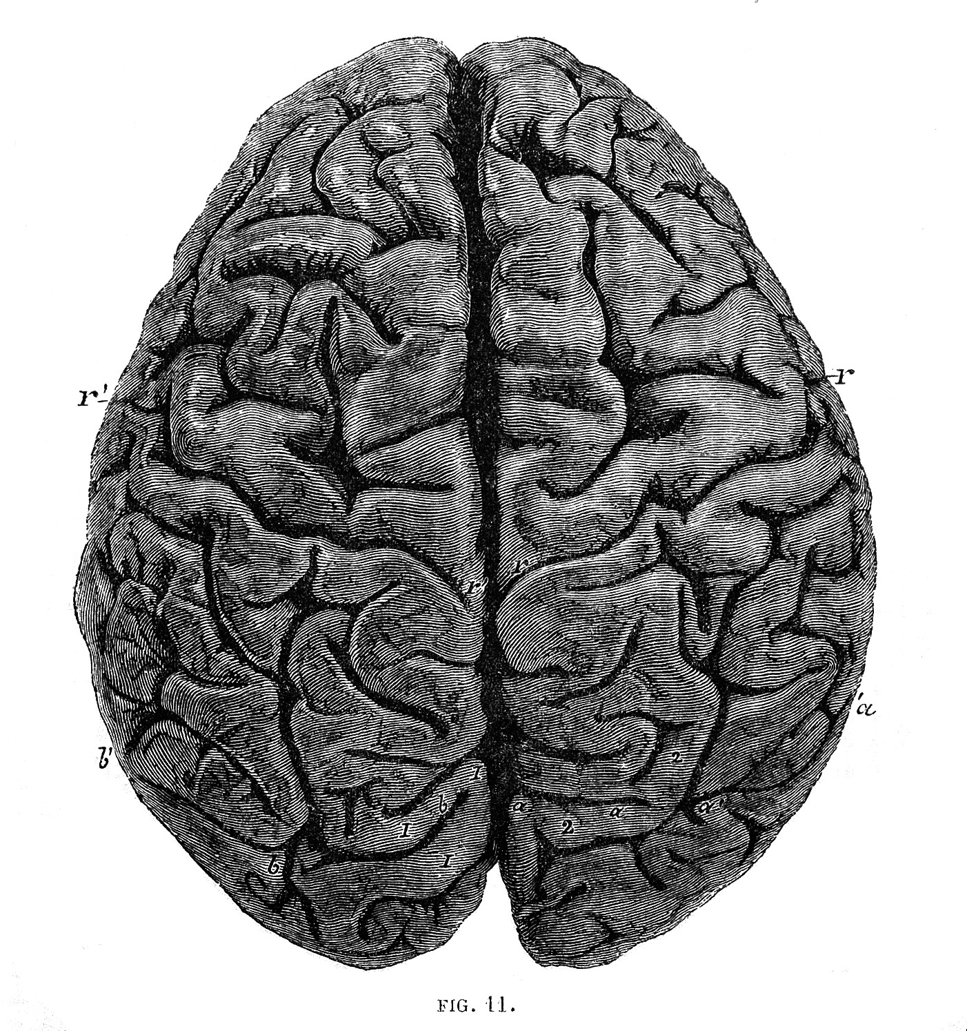 Image result for Paul Broca's Brain