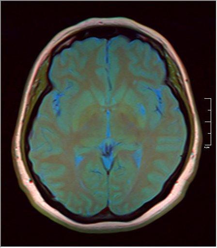 Brain MRI 0145 10.jpg