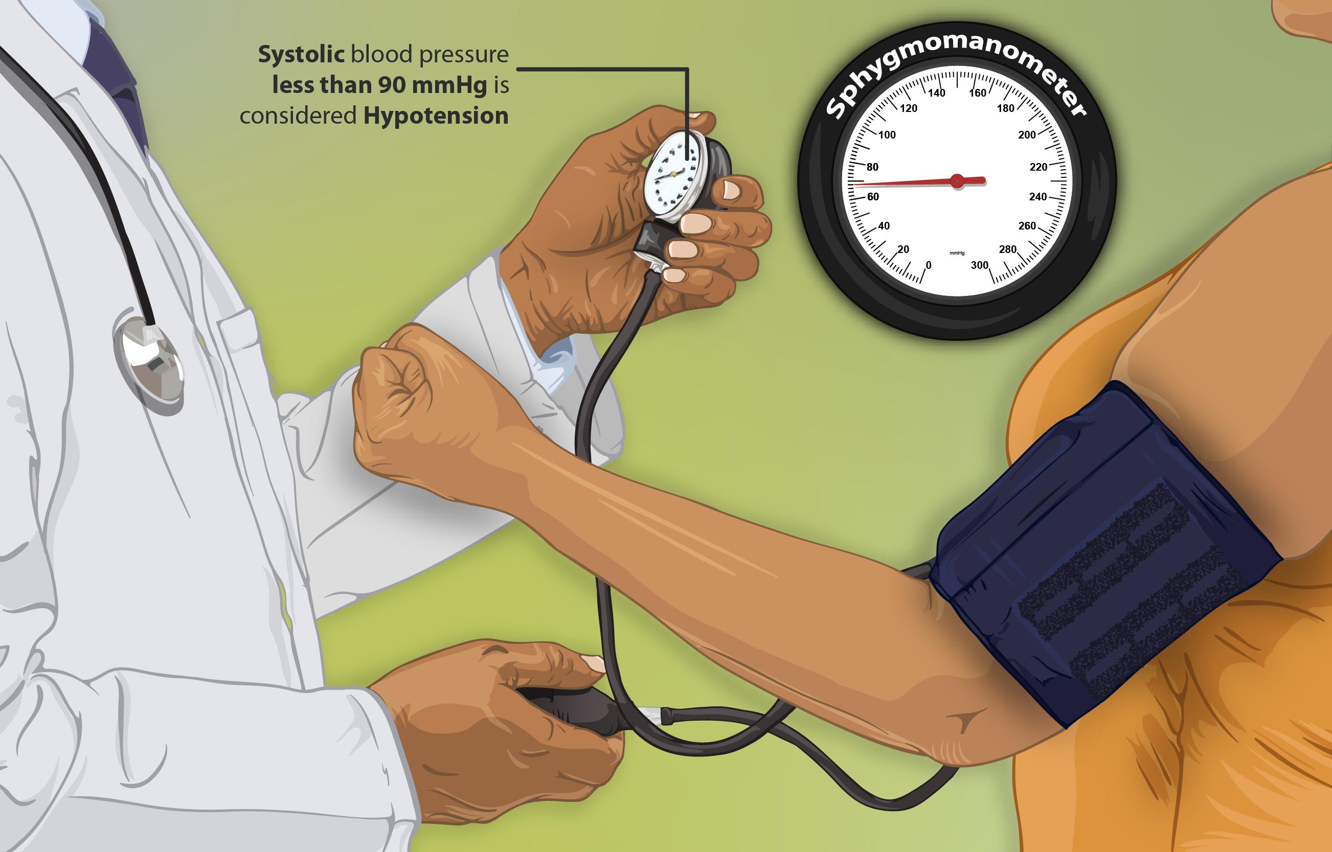 Hypotension - Wikipedia