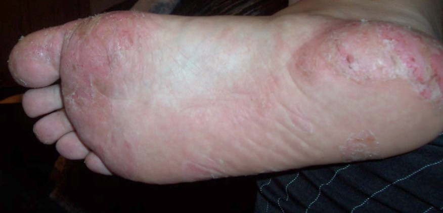 Dyshidrotic Eczema: Overview, Causes, Diagnosis & Pictures