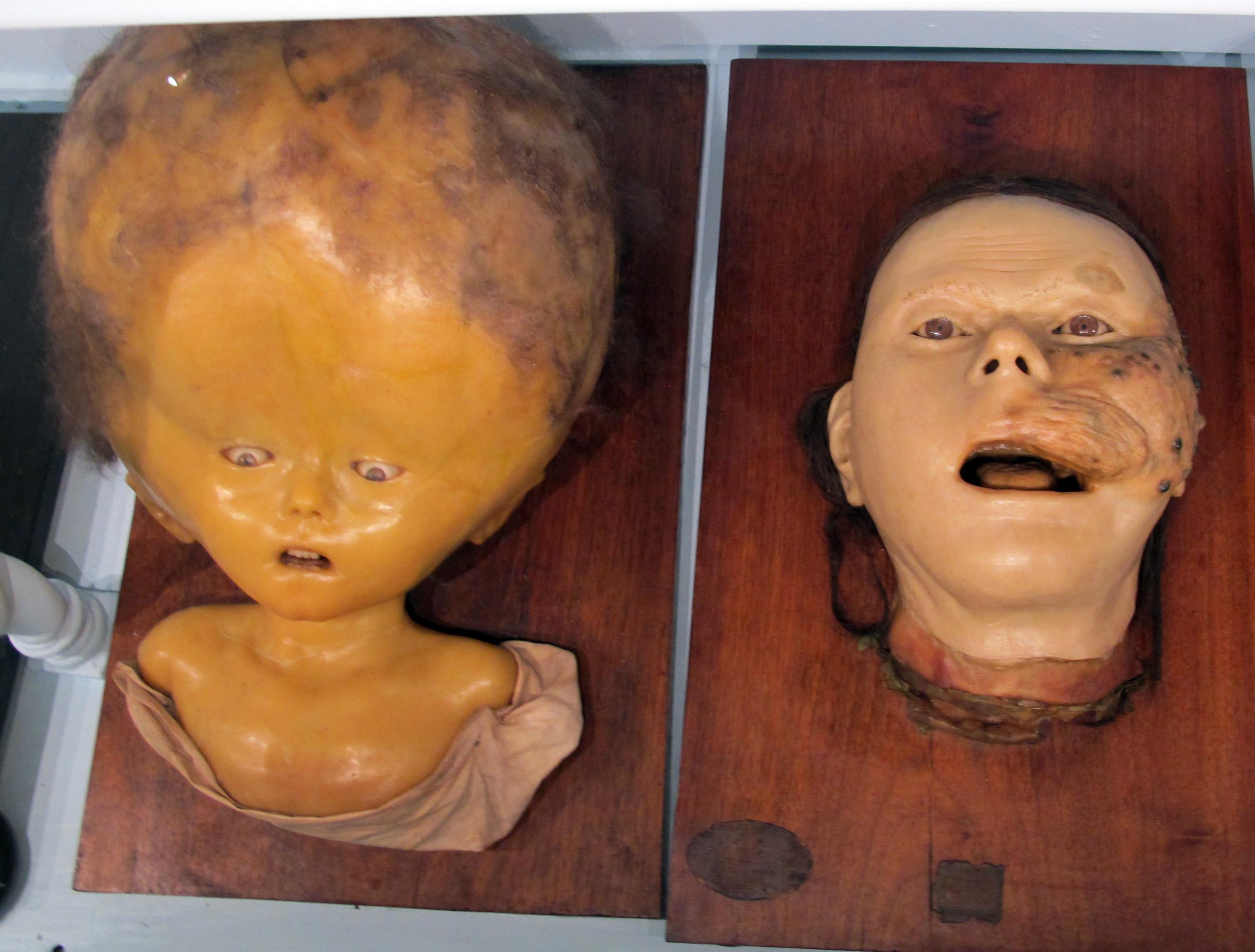 File:Istituto di anatomia patologica, museo, cere, 01.JPG ...
