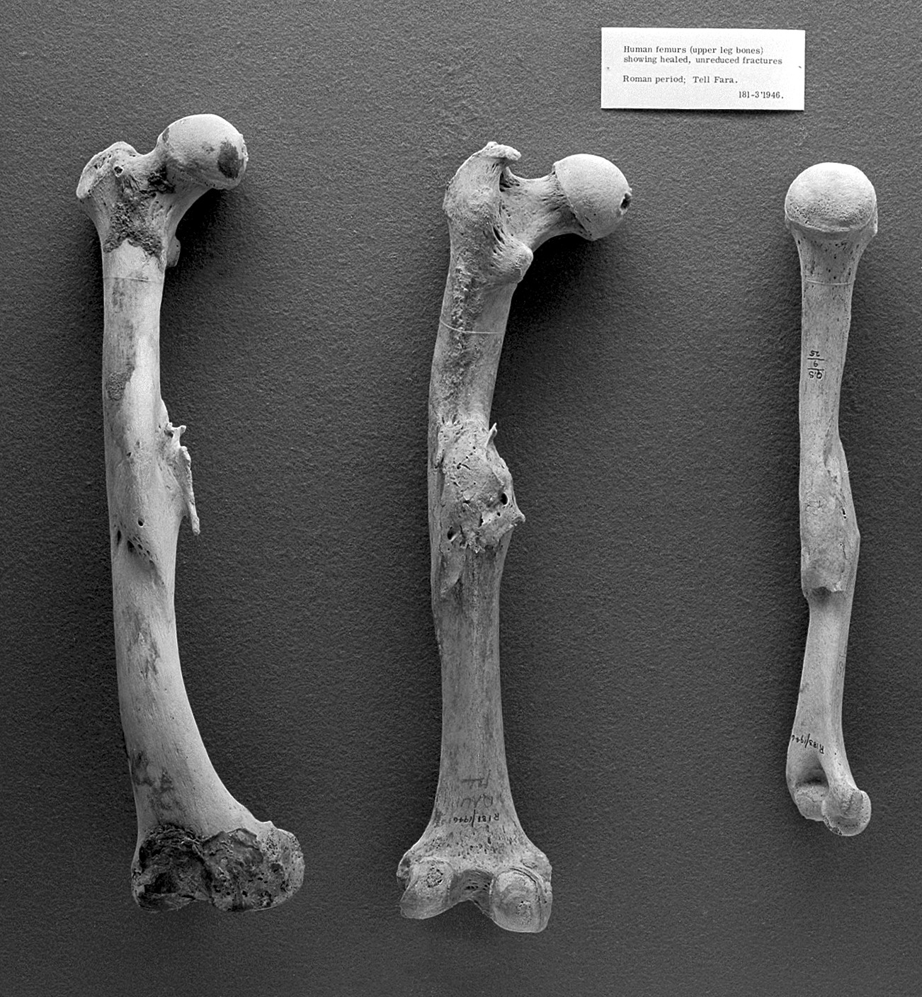Crushed Human Bone : Broken bones untreated