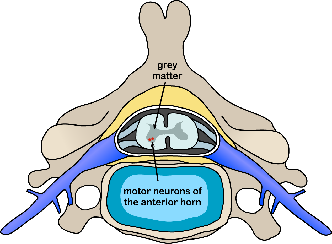 Motor Neuron Disease Wikipedia