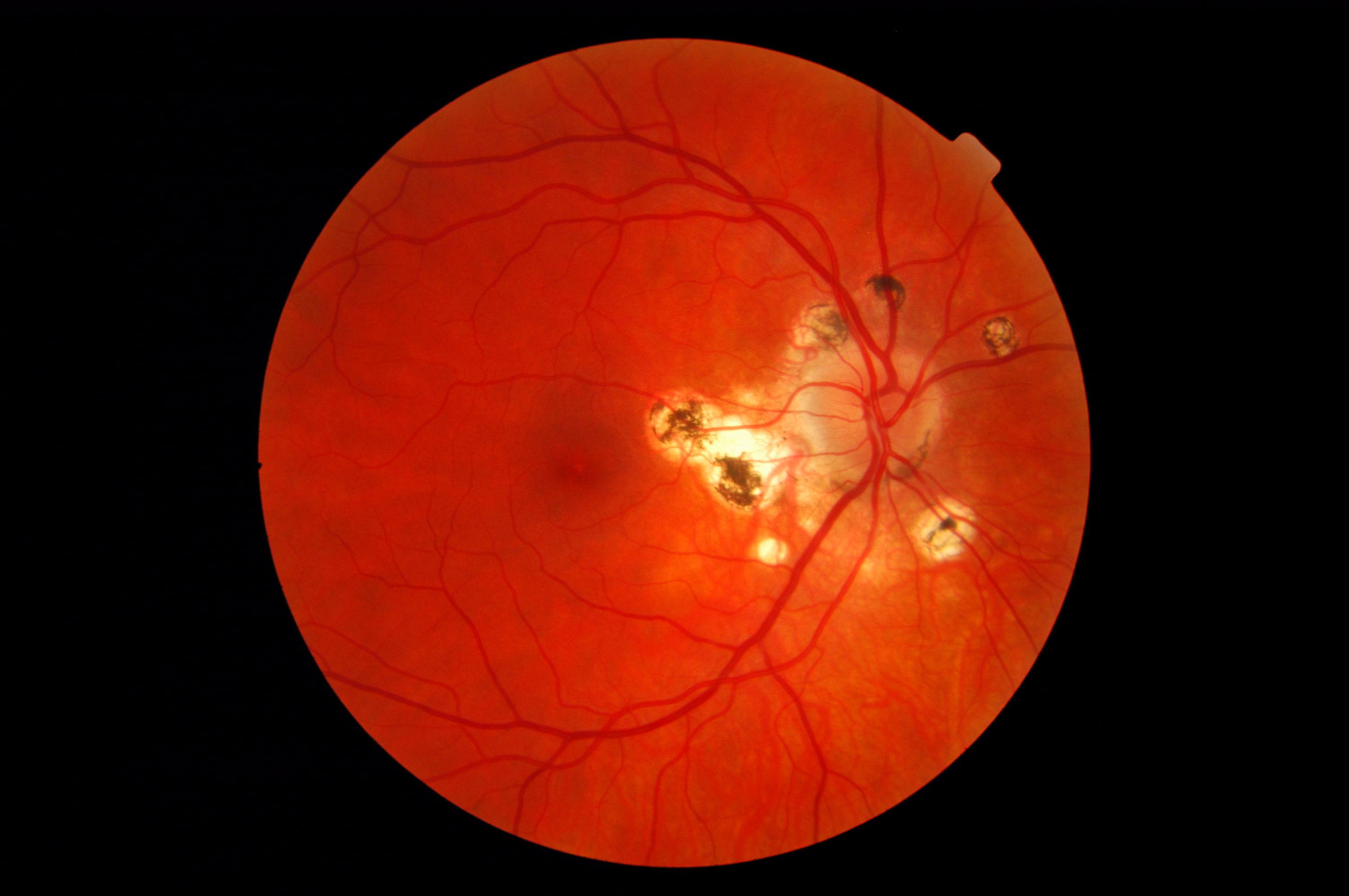 Presumed Ocular Histoplasmosis Syndrome Wikipedia