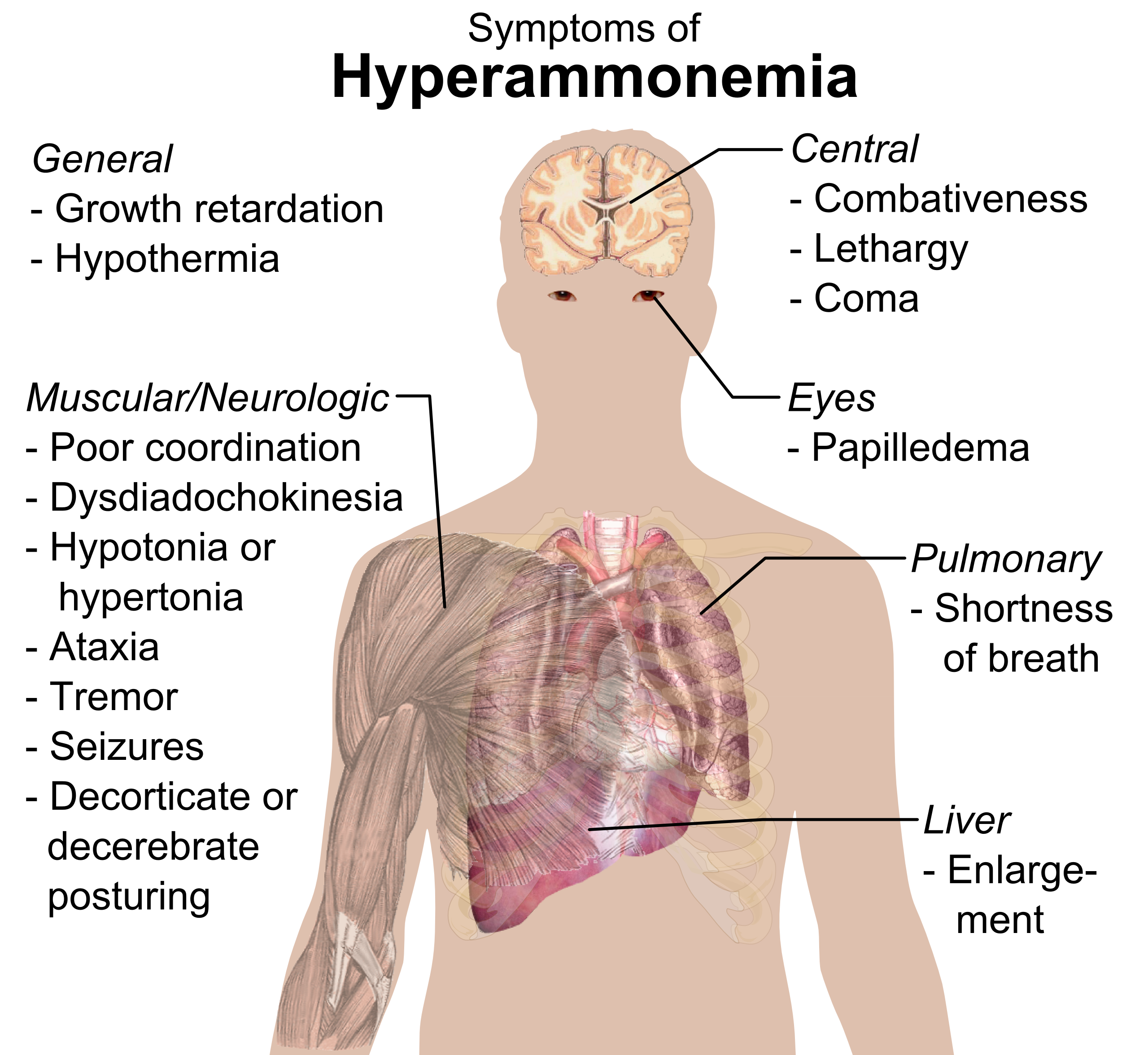 Image Result For Respirtory Diseases Can