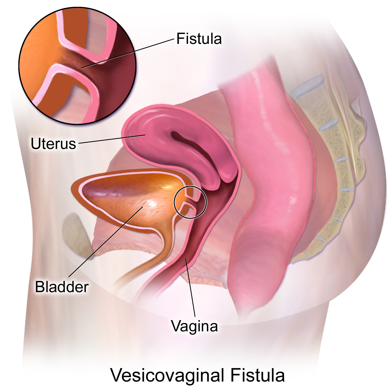 Sex and rectovaginal fistulas