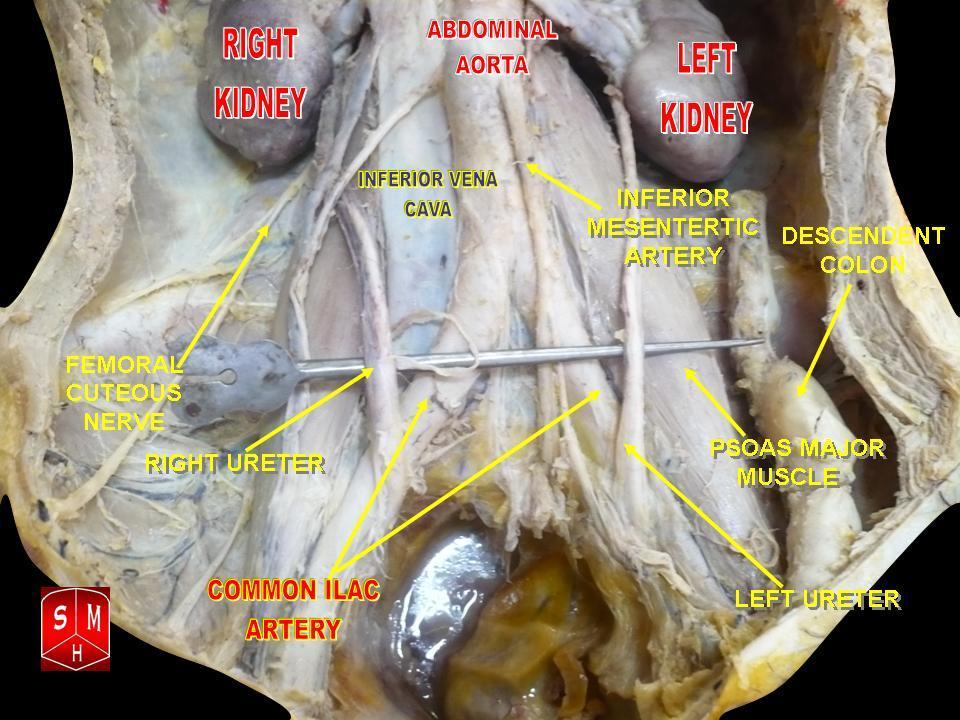 File:Abdominal aorta 2.jpg - Wikipedia