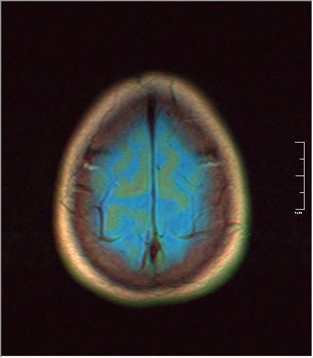 Brain MRI 0153 01.jpg