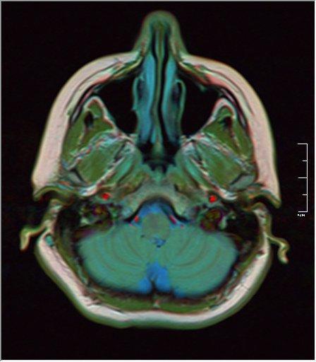 Brain MRI 18.jpg
