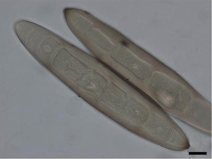 Vermox tabletta adagolasa. További ajánlott fórumok:, Taxonomia de helminthosporium turcicum