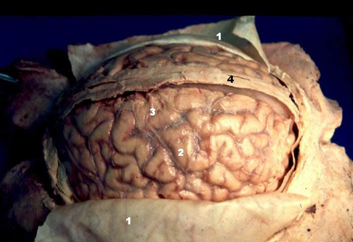 Human brain arachnoid description
