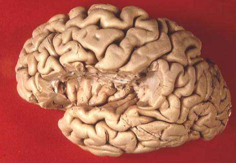 Human brain view on transverse temporal and insular gyri.JPG