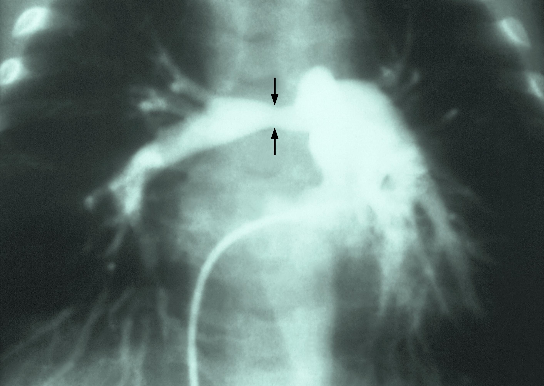 Stenosis Of Pulmonary Artery Wikipedia