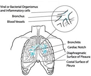 Cuanto tiempo dura la flema en los pulmones consecuencias