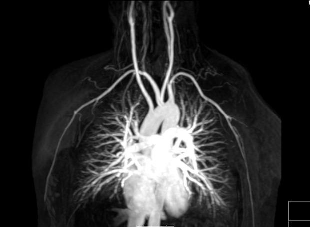 File Arteria Lusoria Mra Mip 08 Jpg Wikimedia Commons