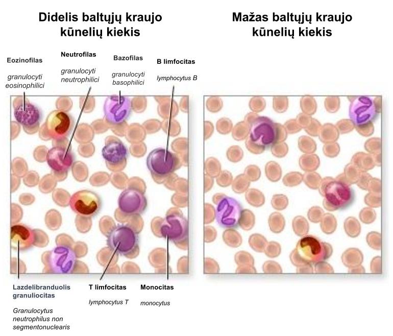 Leukocitų sumažėjimas
