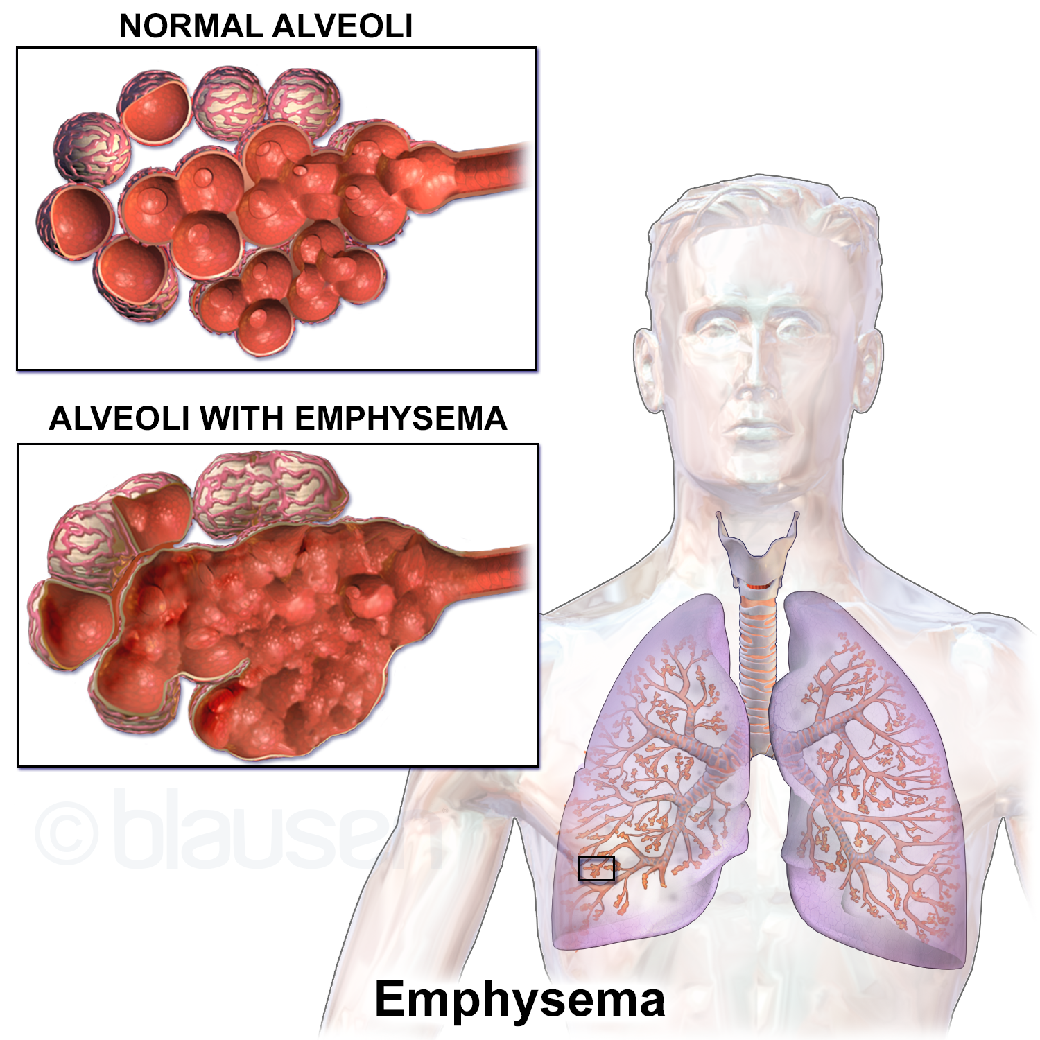 Normal alveoli versus alveoli with emphysema