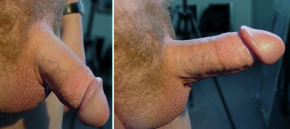 Very well. does like look penis uncircumcised share your