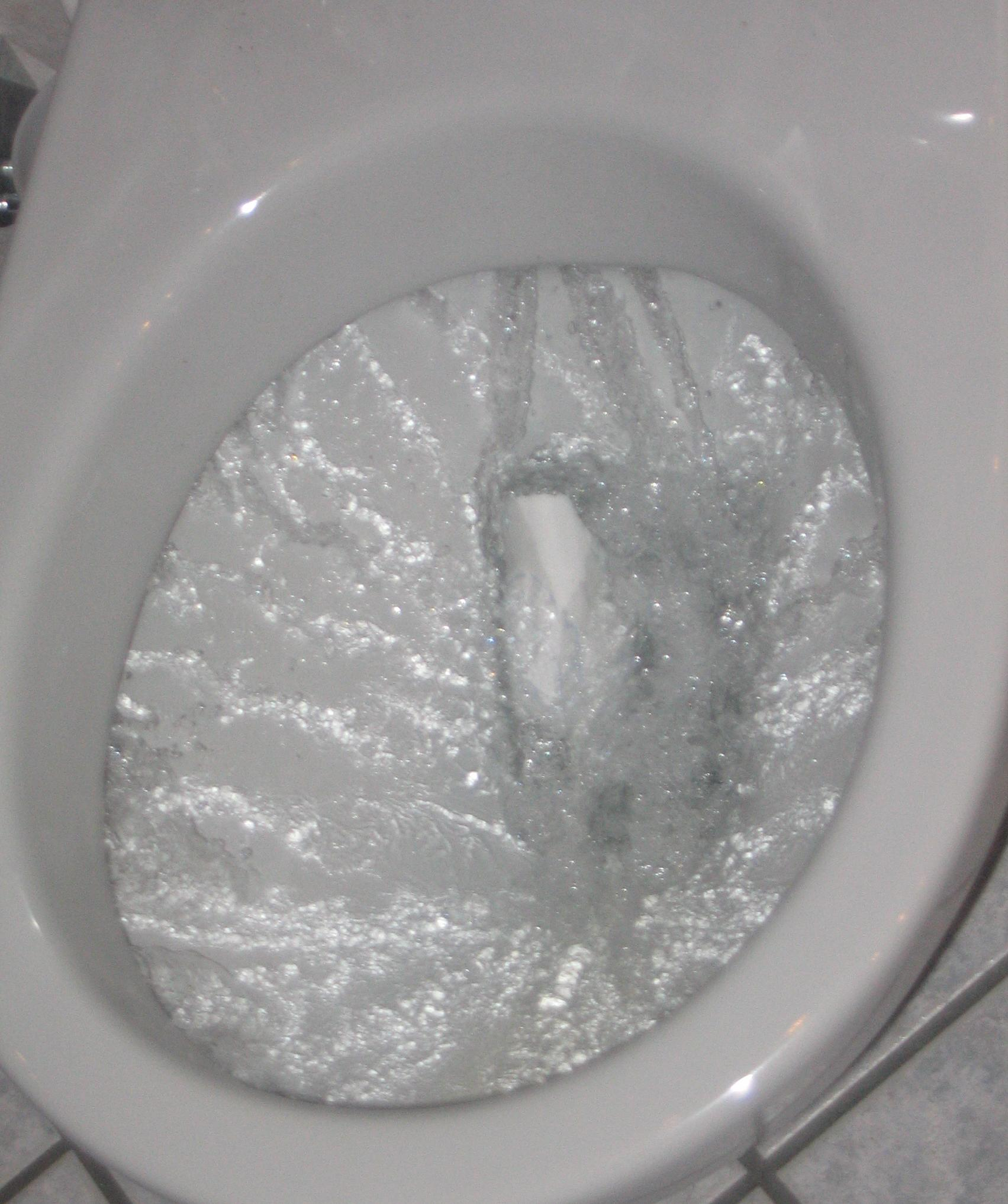 Toto Toilet: PostCare Patient Education Female Self Catheterization
