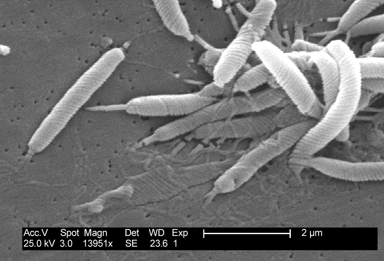 Helicobacter pylori. Microscopia, medicina, biología. Úlcera péptica.