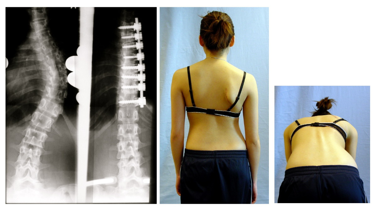 Surgical result after ventral fusion of scoliosis.jpg