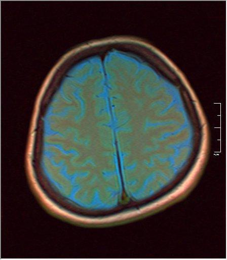 Brain MRI 0125 04.jpg
