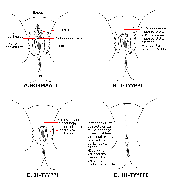 Ympärileikkaus