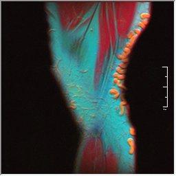 Knee MRI 0025 19 pdfs t1 t2 59f.jpg