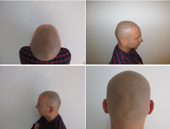 Is scalp micropigmentation worth it?