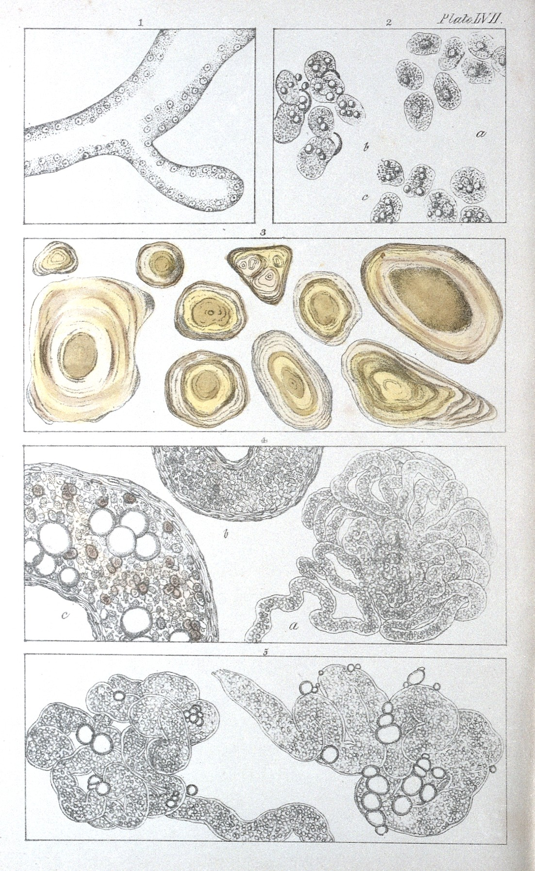 File:A. H. Hassall, The microscopic anatomy of the human body ...