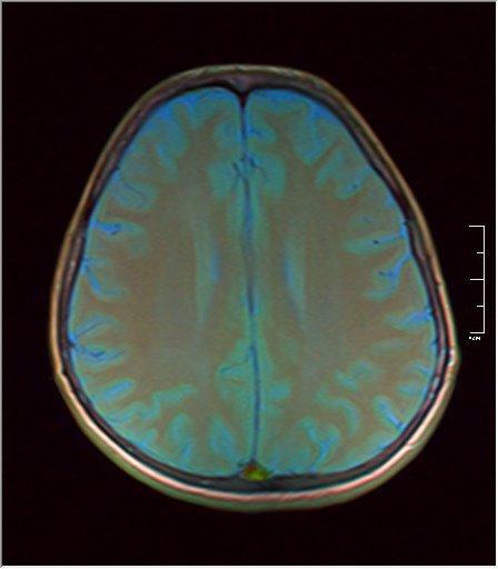 Brain MRI 0146 06.jpg