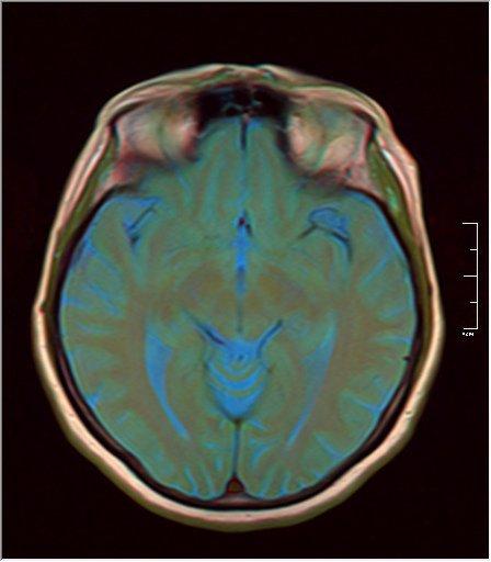 Brain MRI 0213 11.jpg