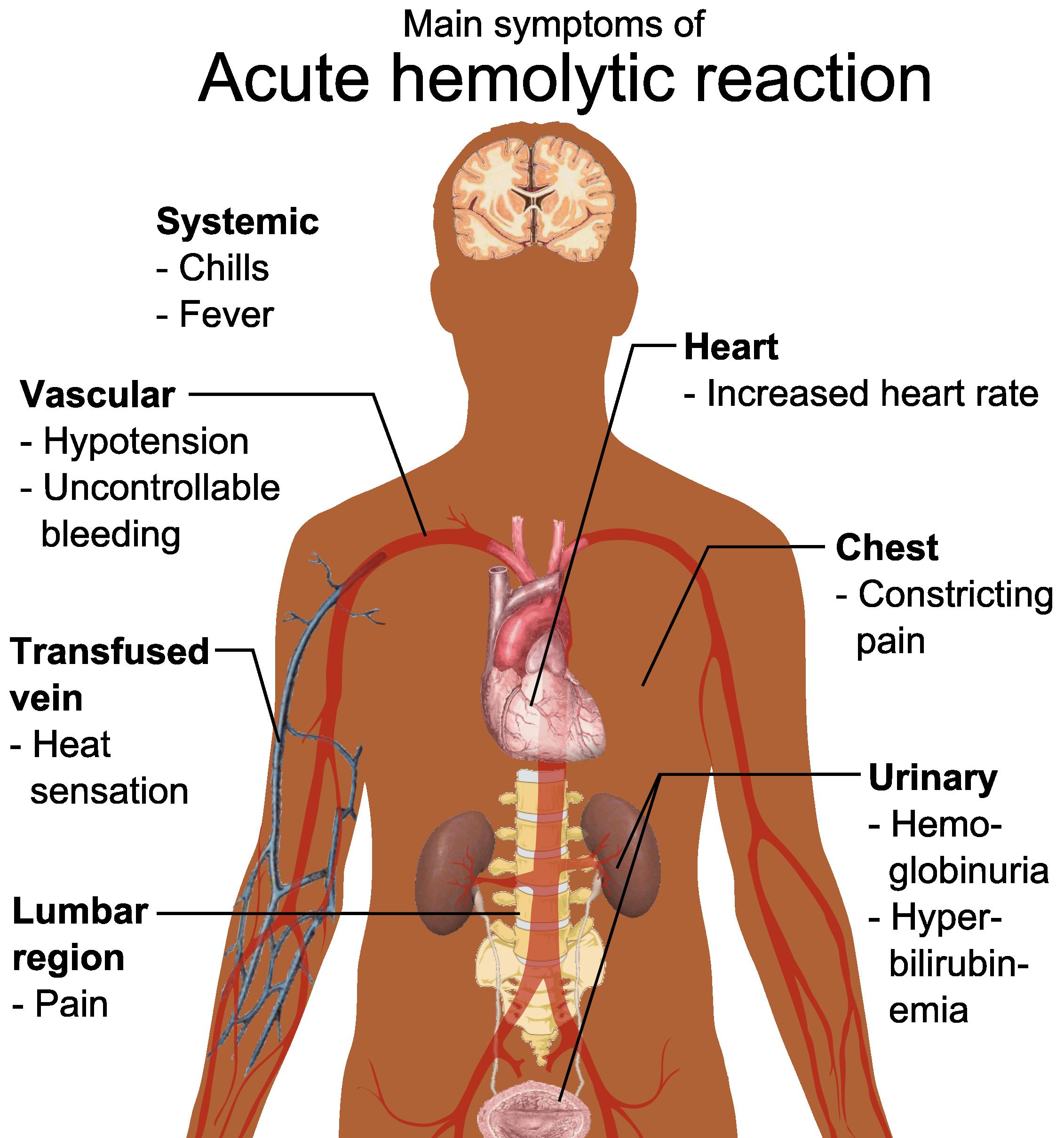 Filemain Symptoms Of Acute Hemolytic Reactiong Wikimedia Commons