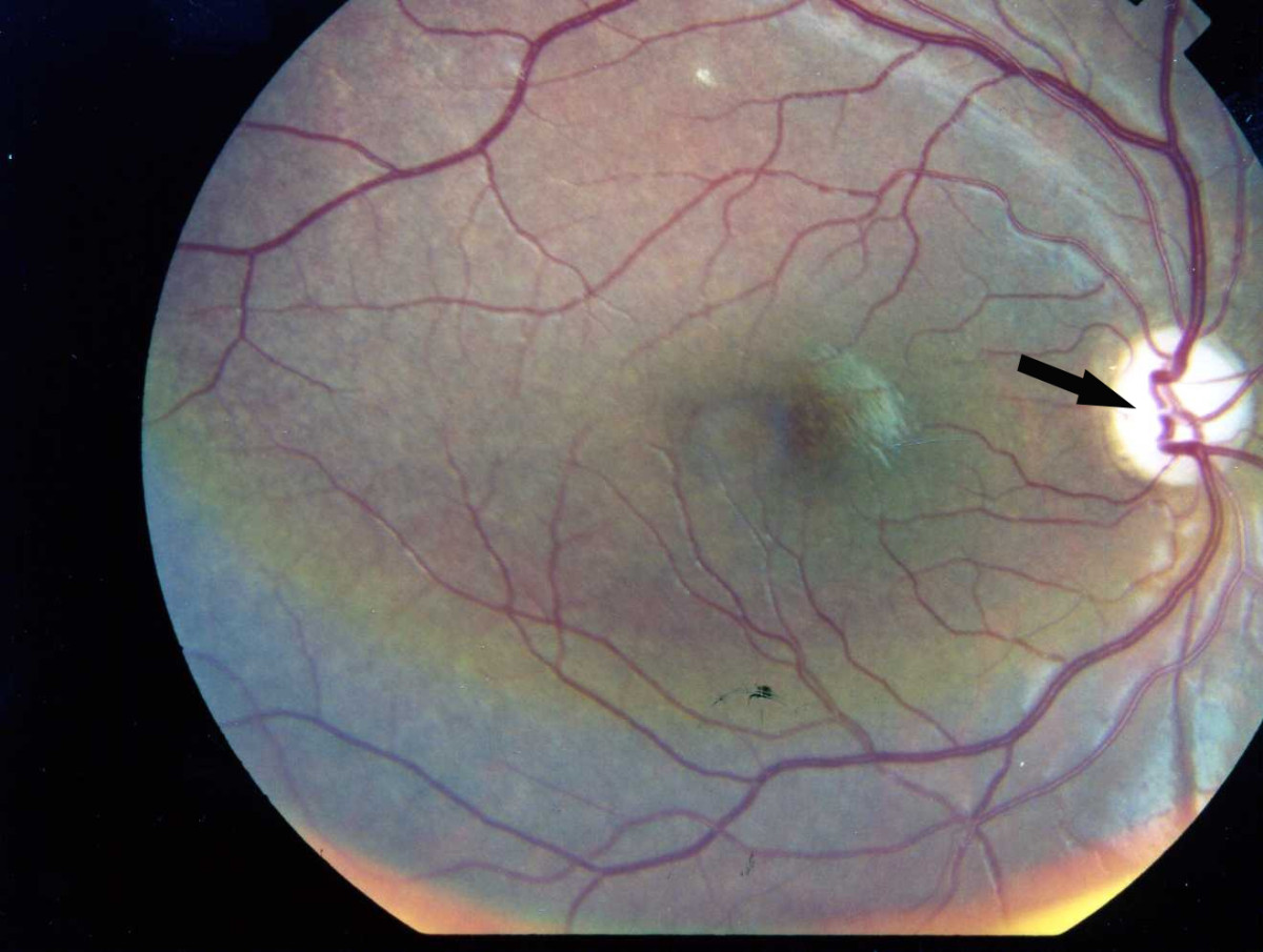 the diagnosis of wolfram syndrome essay Optic atrophy in association with diabetes mellitus is considered necessary to the diagnosis of wolfram syndrome the optic atrophy is progressive over a period of years and can be the presenting symptom.