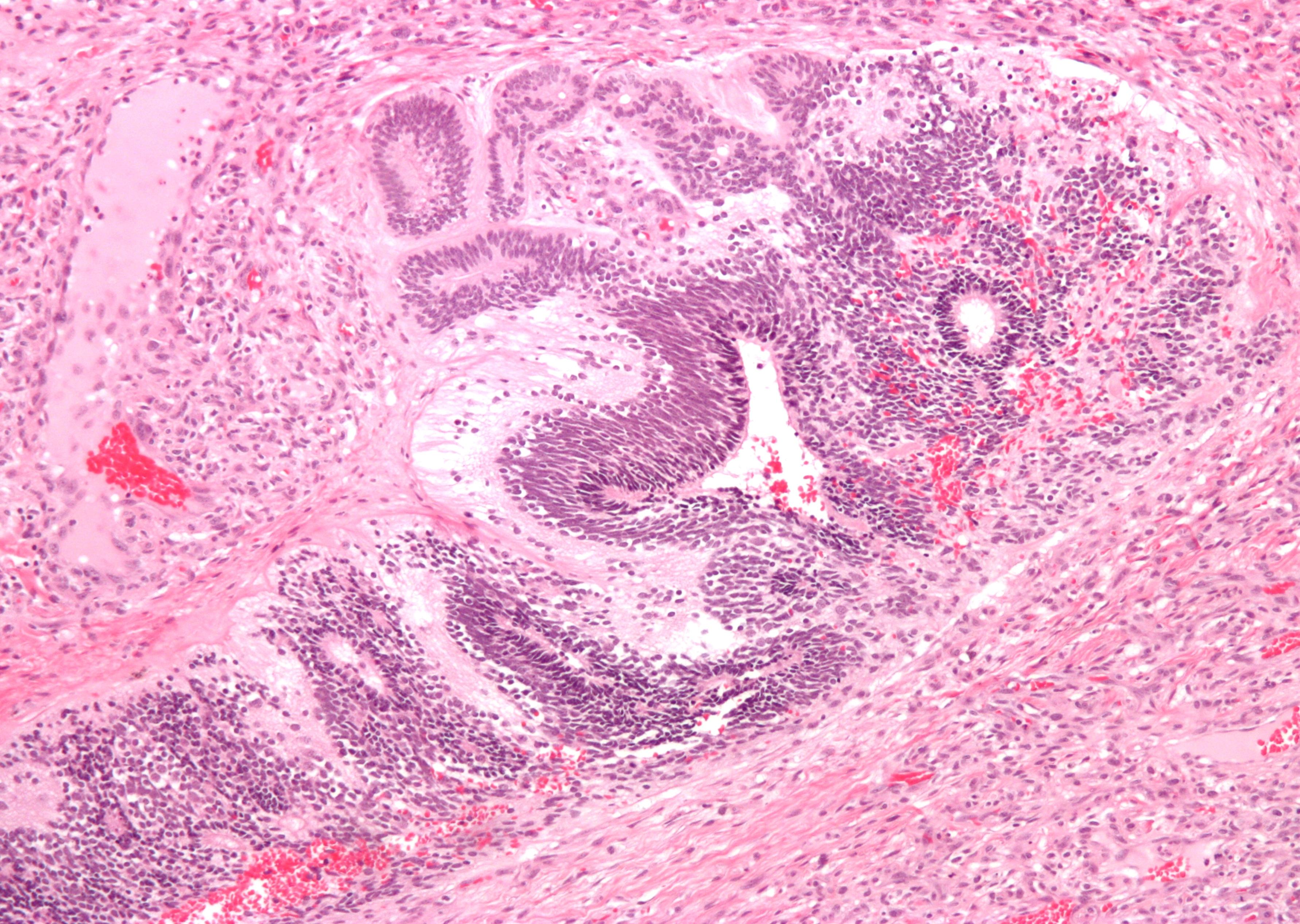 Diagnosis Code For Mediastinal Lymphadenopathy