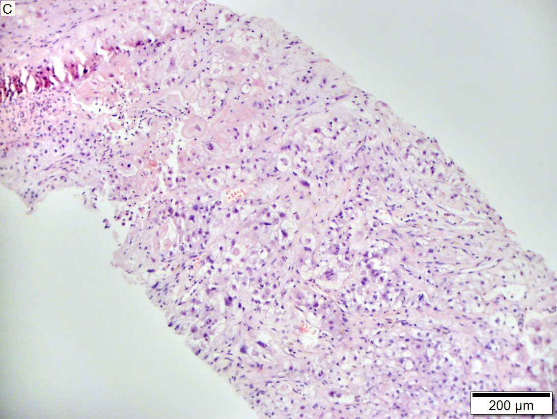 Metastasis of renal cell carcinoma to liver