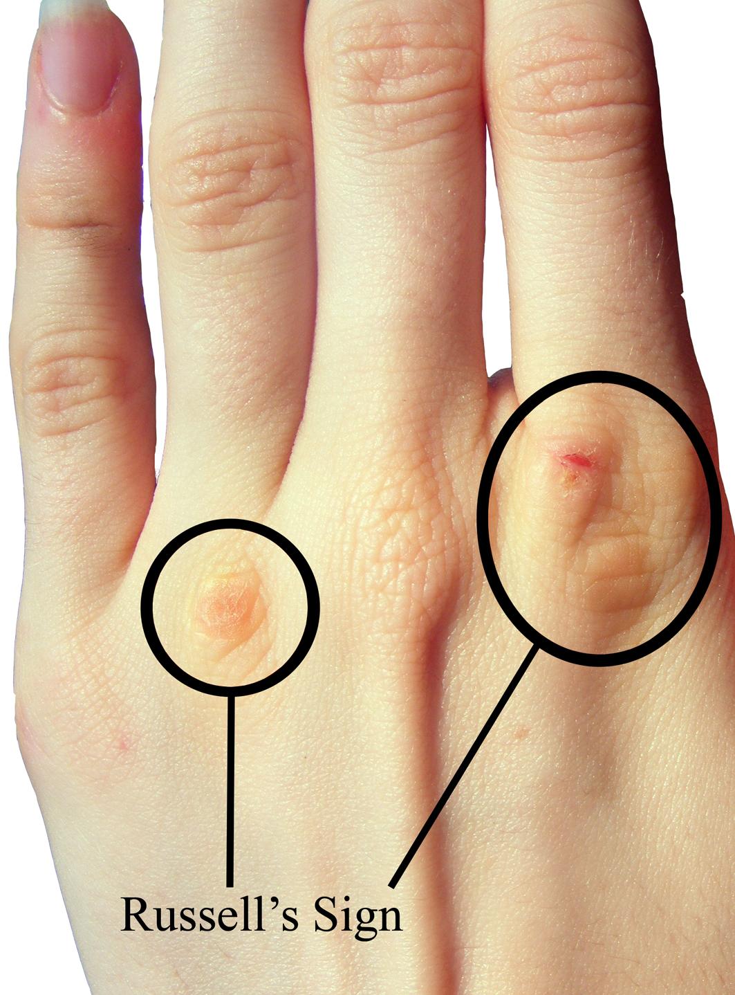 Bulimia nervosa hands