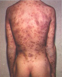 Syphilis lesions on back.jpg