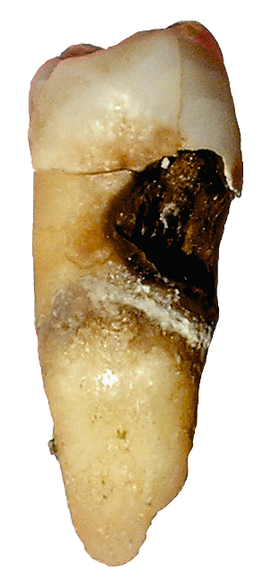 tooth with decay visible