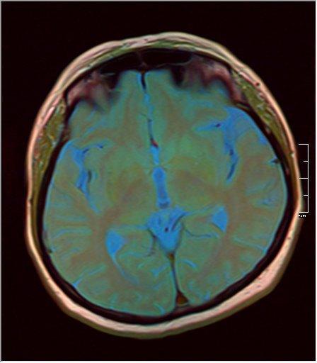 Brain MRI 0125 10.jpg