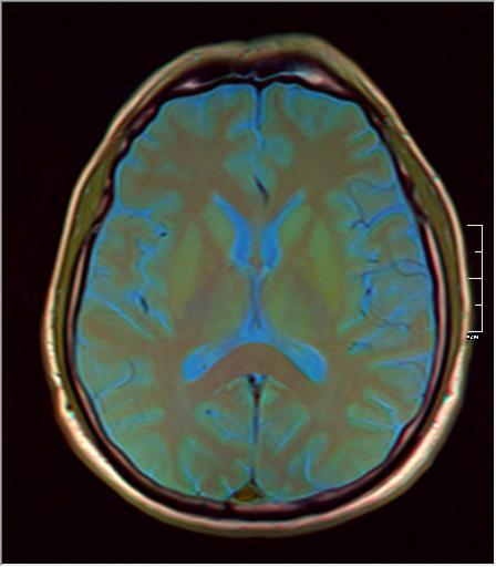 Brain MRI 293 09.png