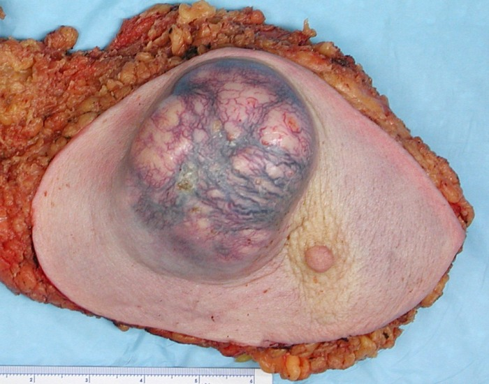 what is intraductal breast cancer
