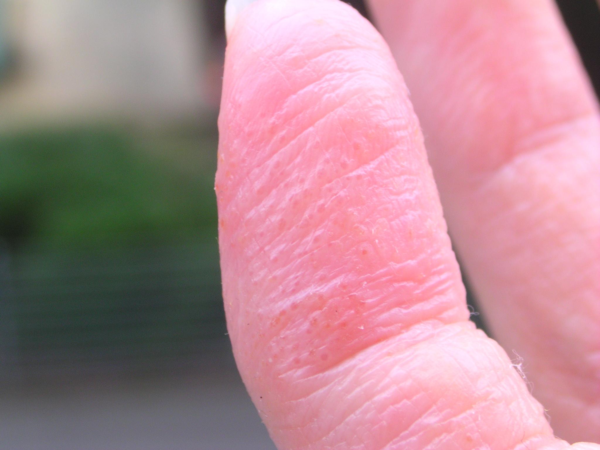 fingers eczema #10