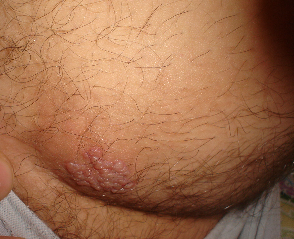 Shingles Virus Pictures Pictures, Images ... - Photobucket