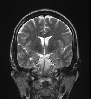 mesial temporal sclerosis