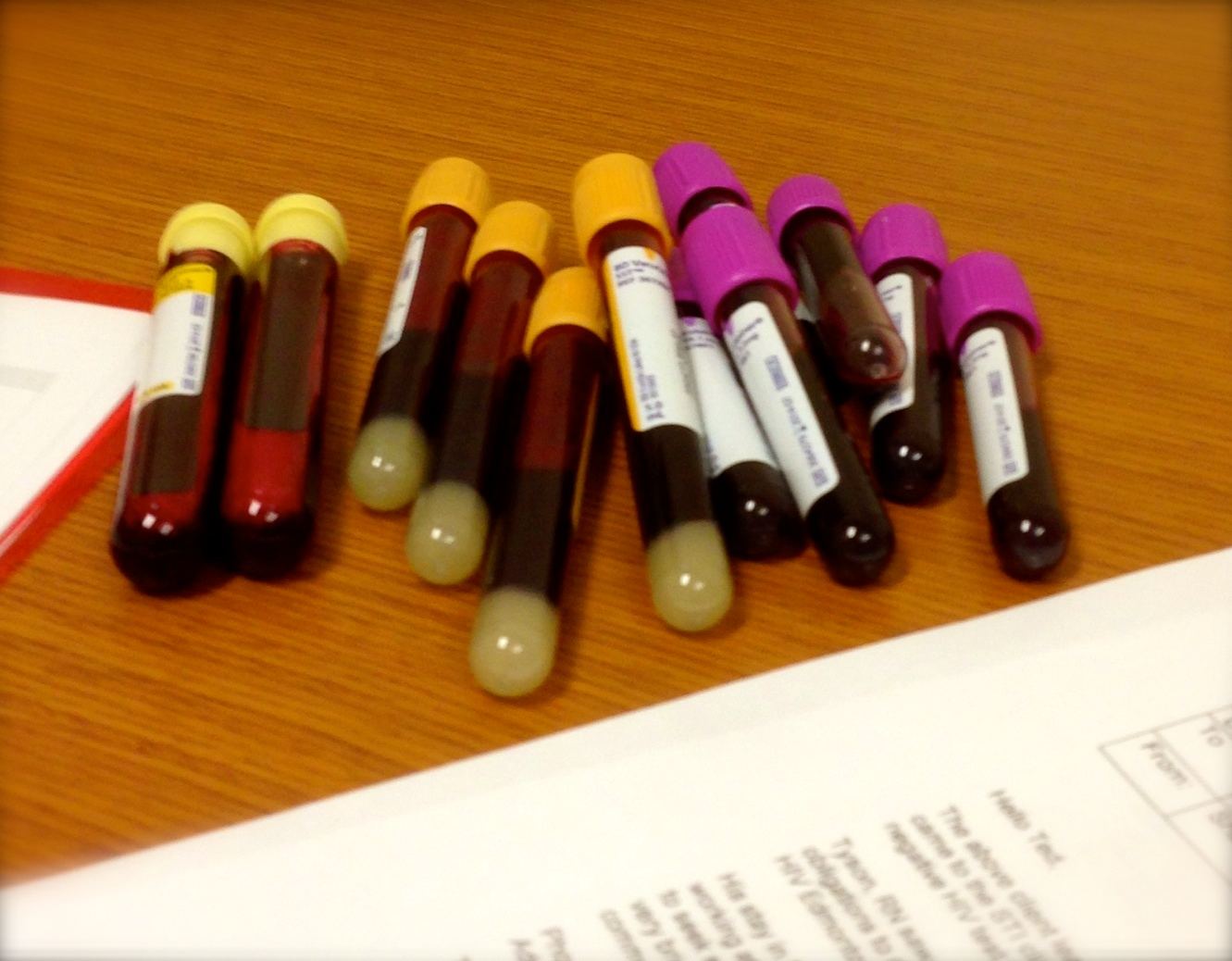 File:Rodney Rousseau first poz blood drawn. July 2013.JPG